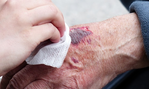 В Севастополе пенсионерка попала под колеса автобуса